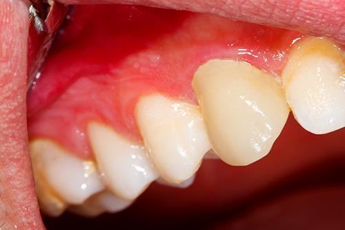 歯ぐきの治療について